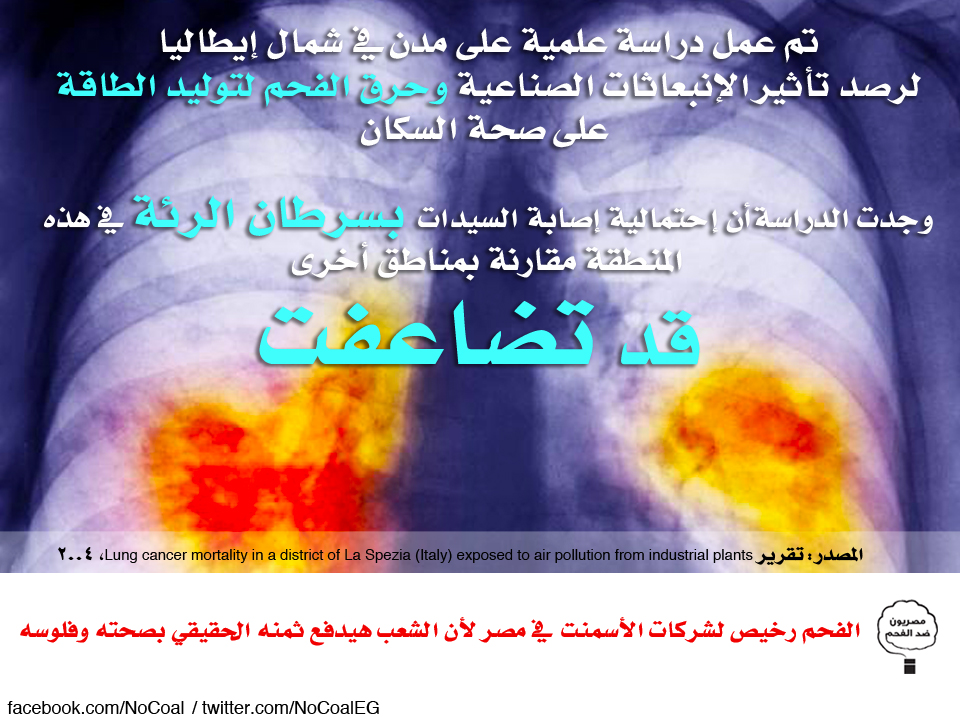 سرطان الرئة يصيب السيدات في شمال إيطاليا