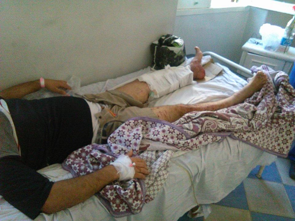 العامل المصاب بطلق ناري في فض وقفة الاسكندرية للغزل والنسيج