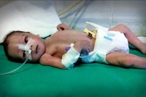 saba-baby-medical-negligence-feat